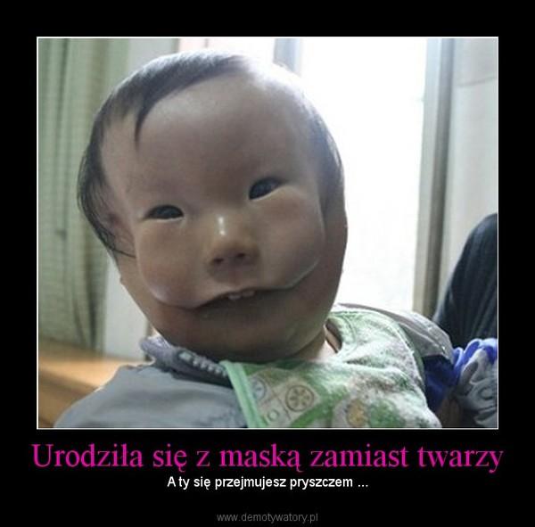 Urodziła się z maską zamiast twarzy – A ty się przejmujesz pryszczem ...