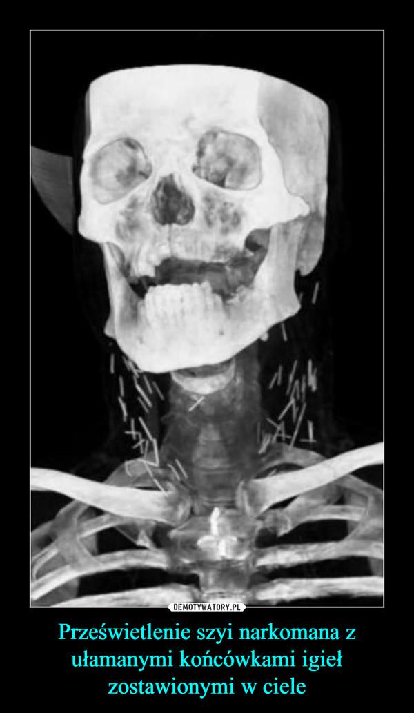 Prześwietlenie szyi narkomana z ułamanymi końcówkami igieł zostawionymi w ciele –