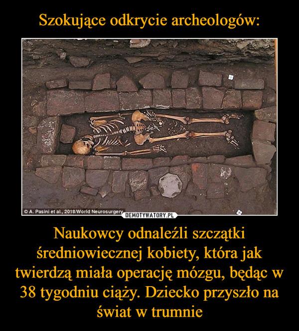 Naukowcy odnaleźli szczątki średniowiecznej kobiety, która jak twierdzą miała operację mózgu, będąc w 38 tygodniu ciąży. Dziecko przyszło na świat w trumnie –