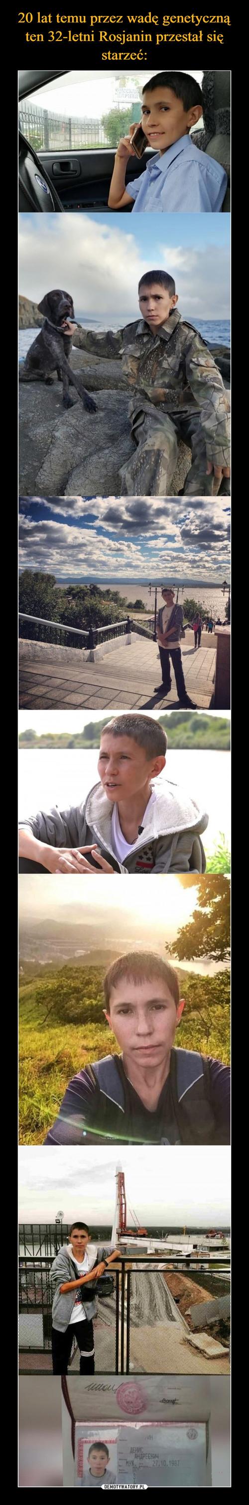 20 lat temu przez wadę genetyczną ten 32-letni Rosjanin przestał się starzeć: