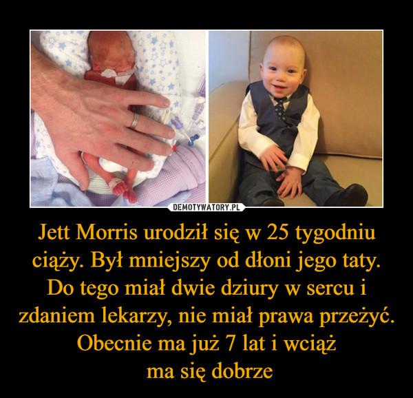 Jett Morris urodził się w 25 tygodniu ciąży. Był mniejszy od dłoni jego taty. Do tego miał dwie dziury w sercu i zdaniem lekarzy, nie miał prawa przeżyć. Obecnie ma już 7 lat i wciąż ma się dobrze –
