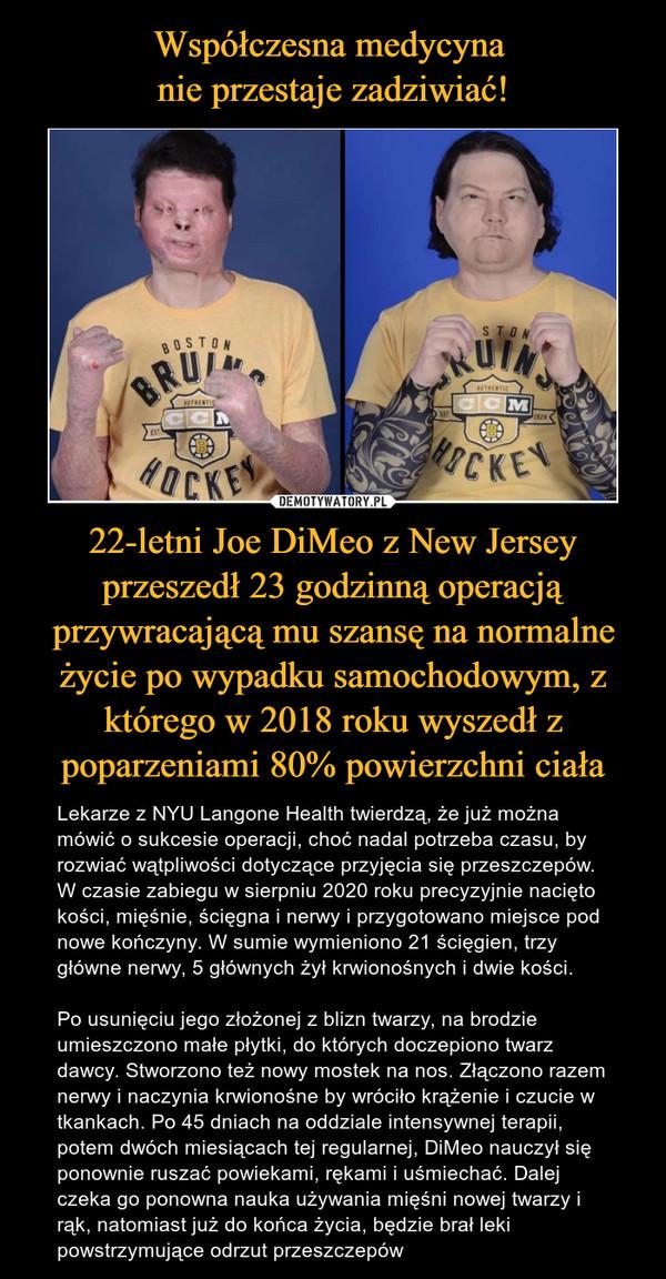 Współczesna medycyna  nie przestaje zadziwiać! 22-letni Joe DiMeo z New Jersey przeszedł 23 godzinną operacją przywracającą mu szansę na normalne życie po wypadku samochodowym, z którego w 2018 roku wyszedł z poparzeniami 80% powierzchni ciała