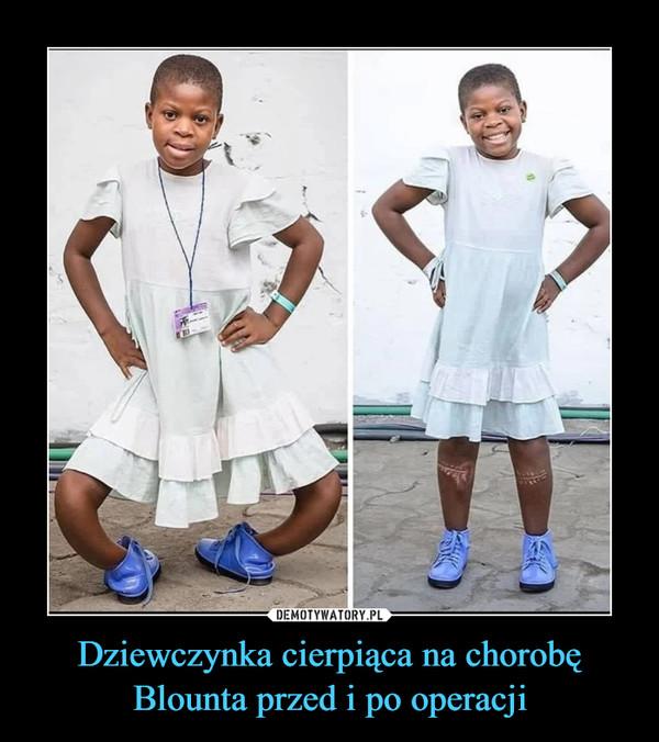 Dziewczynka cierpiąca na chorobę Blounta przed i po operacji –