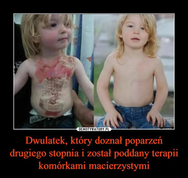 Dwulatek, który doznał poparzeń drugiego stopnia i został poddany terapii komórkami macierzystymi –